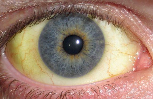 ojos-amarillos