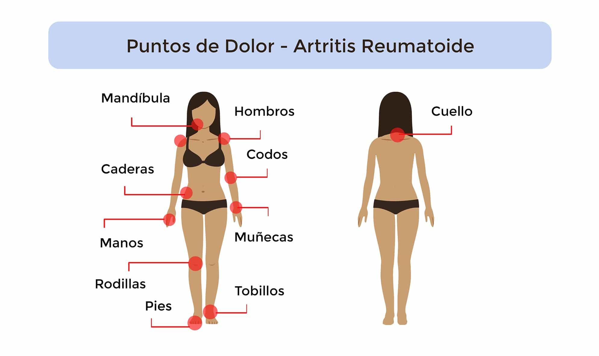 Artritis Reumatoide: Qué es, Síntomas, Causas, Tratamiento..
