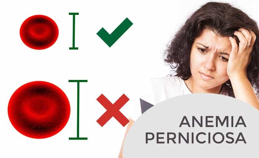 Anemia megaloblastica y perdida de peso