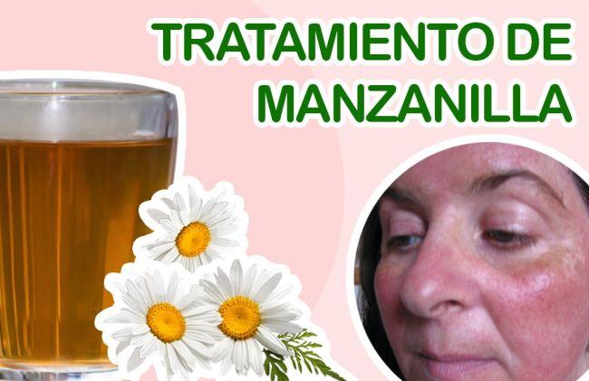 Qué Es La Rosácea Tratamiento De Manzanilla Nuevas Evas
